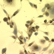 Mouse Anti-Hsp70 Antibody [C92] used in Immunocytochemistry/Immunofluorescence (ICC/IF) on Mouse Heat Shocked Melanoma cells (SMC-100)
