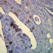 Mouse Anti-Hsp70 Antibody [C92] used in Immunohistochemistry (IHC) on Human colon carcinoma (SMC-100)
