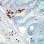SMC-100_Hsp70_Antibody_C92_IHC_Mouse_colon-carcinoma_40x_1.png