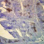 Mouse Anti-Hsp70 Antibody [BB70] used in Immunohistochemistry (IHC) on Human colon carcinoma (SMC-106)