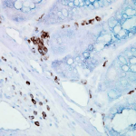 SMC-106_Hsp70_Antibody_BB70_IHC_Mouse_inflamed-colon_40x_1.png