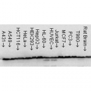 Mouse Anti-Hsp60 Antibody [LK-1] used in Western Blot (WB) on Human Cell line lysates (SMC-110)