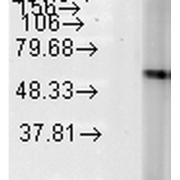 Mouse Anti-Hsp60 Antibody [LK-2] used in Western Blot (WB) on Human Heat Shocked HeLa cell lysates (SMC-111)