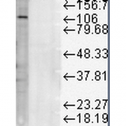 Mouse Anti-LAMP1 Antibody [Ly1C6] used in Western Blot (WB) on Rat liver microsome lysate (SMC-140)