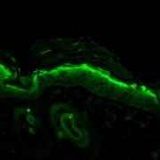 Mouse Anti-Nitrotyrosine Antibody [39B6] used in Immunohistochemistry (IHC) on Mouse backskin (SMC-154)