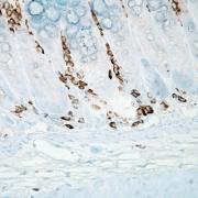 Mouse Anti-Nitrotyrosine Antibody [39B6] used in Immunohistochemistry (IHC) on Mouse inflamed colon (SMC-154)