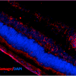 SMC-155_DNA-Damage_Antibody_15A3_IHC_Mouse_Retinal-Injury-Model_1.png
