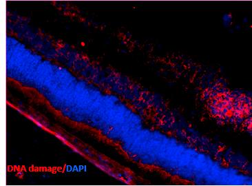 <p>Immunohistochemistry analysis using Mouse Anti-DNA Damage Monoclonal Antibody, Clone 15A3 (SMC-155). Tissue: Retinal Injury Model. Species: Mouse. Primary Antibody: Mouse Anti-DNA Damage Monoclonal Antibody (SMC-155) at 1:1000. Secondary Antibody: Alexa Fluor 594 Goat Anti-Mouse (red). Courtesy of: Dr. Rajashekhar Gangaraju, University of Indiana, Department of Opthamology, Eugene and Marilyn Glick Eye Institute.</p>
