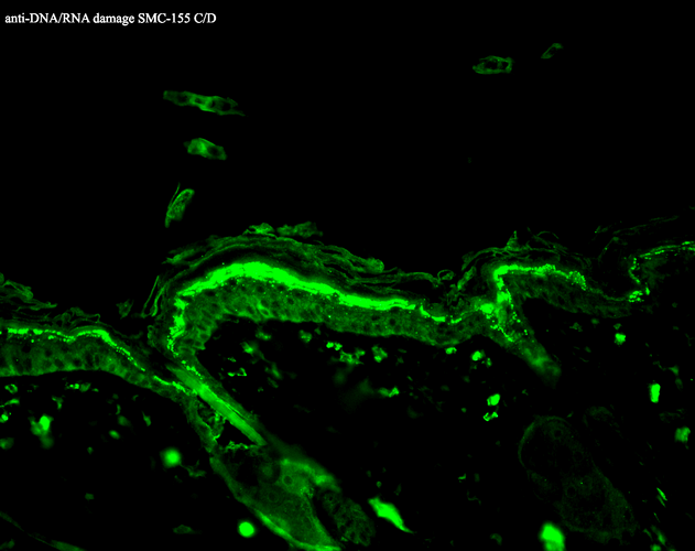 <p>Immunohistochemistry analysis using Mouse Anti-DNA Damage Monoclonal Antibody, Clone 15A3 (SMC-155). Tissue: backskin. Species: Mouse. Fixation: Bouin's Fixative and paraffin-embedded. Primary Antibody: Mouse Anti-DNA Damage Monoclonal Antibody (SMC-155) at 1:100 for 1 hour at RT. Secondary Antibody: FITC Goat Anti-Mouse (green) at 1:50 for 1 hour at RT.</p>