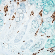 Mouse Anti-DNA Damage Antibody [15A3] used in Immunohistochemistry (IHC) on Mouse inflamed colon (SMC-155)