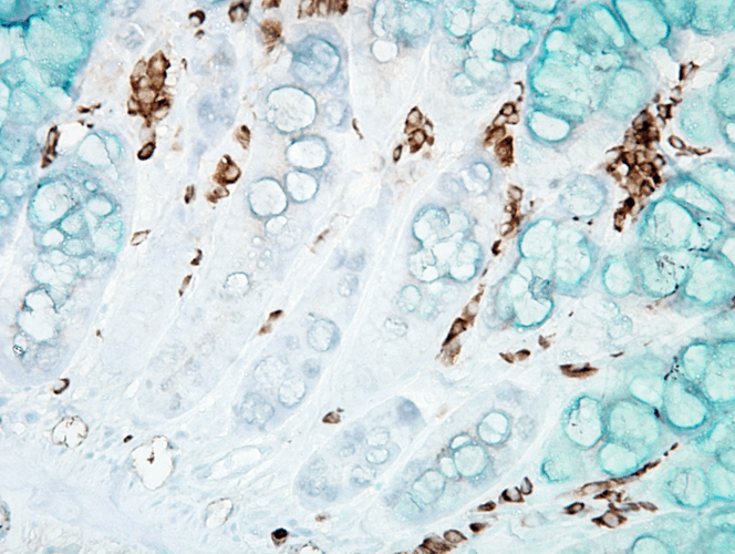 <p>Immunohistochemistry analysis using Mouse Anti-DNA Damage Monoclonal Antibody, Clone 15A3 (SMC-155). Tissue: inflamed colon. Species: Mouse. Fixation: Formalin. Primary Antibody: Mouse Anti-DNA Damage Monoclonal Antibody (SMC-155) at 1:1000000 for 12 hours at 4°C. Secondary Antibody: Biotin Goat Anti-Mouse at 1:2000 for 1 hour at RT. Counterstain: Mayer Hematoxylin (purple/blue) nuclear stain at 200 µl for 2 minutes at RT. Magnification: 40x.</p>