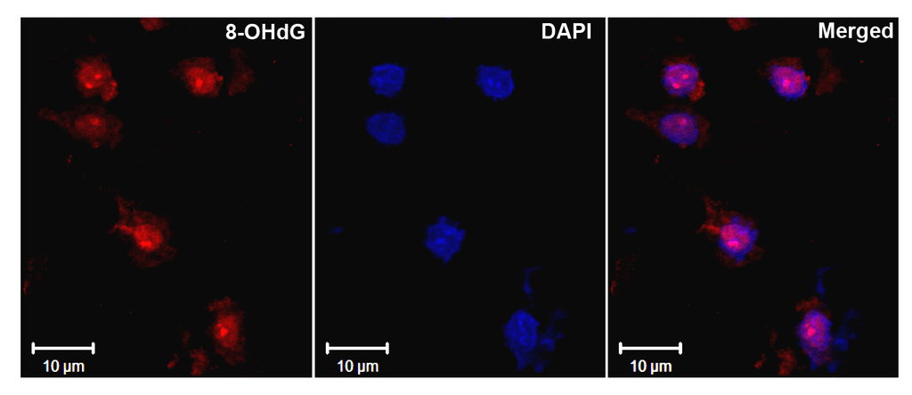 <p>Immunohistochemistry analysis using Mouse Anti-DNA Damage Monoclonal Antibody, Clone 15A3 (SMC-155). Tissue: Ischemic fresh brain tissue. Species: Rat. Primary Antibody: Mouse Anti-DNA Damage Monoclonal Antibody (SMC-155) at 1:1000 for 16 hours at RT. Secondary Antibody: Alexa Fluor 546 Goat Anti-mouse (Red) at 1:500 for 1 hour at RT. Localization: Cerebral Cortex. Courtesy of: Dr. Yi Yang, U. New Mexico.</p>