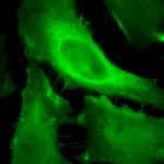 SMC-157_Phosphotyrosine_Antibody_13F9_ICC-IF_Human_HeLa-Cells_100x_Composite.png