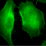SMC-158_Phosphothreonine_Antibody_18F9_ICC-IF_Human_HeLa-Cells_100x_Composite.png