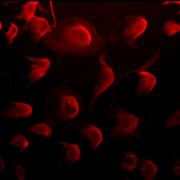 Mouse Anti-Phosphothreonine Antibody [18F9] used in Immunocytochemistry/Immunofluorescence (ICC/IF) on Human HeLa Cells (SMC-158)