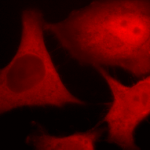 SMC-171_Ubiquitin_Antibody_6C11-B3_ICC-IF_Human_HeLa-Cells_100x_Composite.png