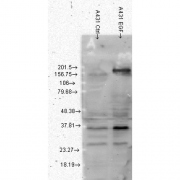 Mouse Anti-Phosphotyrosine Antibody [G104] used in Western Blot (WB) on Human A431 cell lysates (SMC-174)