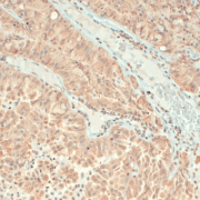 Mouse Anti-VAMP Antibody [SP-11] used in Immunohistochemistry (IHC) on Human Brain Slice (SMC-179)
