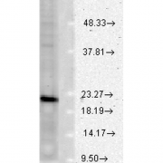 Mouse Anti-VAMP Antibody [SP-11] used in Western Blot (WB) on Rat brain lysates (SMC-179)