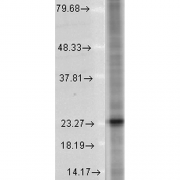 Mouse Anti-SNAP25 Antibody [SP-12] used in Western Blot (WB) on Human Cell lysates (SMC-180)