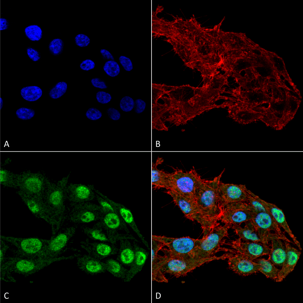 <p>Immunocytochemistry/Immunofluorescence analysis using Mouse Anti-DNMT1 Monoclonal Antibody, Clone 11H8 (SMC-231). Tissue: Colon carcinoma cell line (RKO). Species: Human. Fixation: 4% Formaldehyde for 15 min at RT. Primary Antibody: Mouse Anti-DNMT1 Monoclonal Antibody (SMC-231) at 1:100 for 60 min at RT. Secondary Antibody: Goat Anti-Mouse ATTO 488 at 1:100 for 60 min at RT. Counterstain: Phalloidin Texas Red F-Actin stain; DAPI (blue) nuclear stain at 1:1000, 1:5000 for 60 min at RT, 5 min at RT. Localization: Nucleus. Magnification: 60X. (A) DAPI nuclear stain. (B) Phalloidin Texas Red F-Actin stain. (C) DNMT1. (D) Composite.</p>