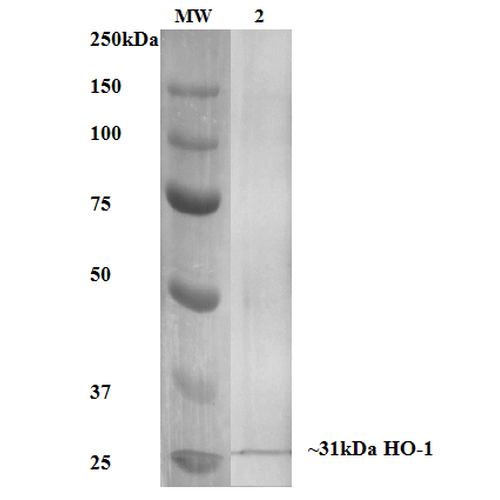 <p>Western Blot analysis of Human, Mouse, Rat Rat Kidney Lysate showing detection of ~31 kDa HO-1 protein using Mouse Anti-HO-1 Monoclonal Antibody, Clone 6B8-2F2 (SMC-234). Lane 1: MW Ladder.  Lane 2: Rat Kidney Lysate. Block: 5% milk + TBST for 1 hour at RT. Primary Antibody: Mouse Anti-HO-1 Monoclonal Antibody (SMC-234) at 1:1000 for 1 hour at RT. Secondary Antibody: HRP Goat Anti-Mouse at 1:50 for 1 hour at RT. Color Development: TMB solution for 5 min at RT. Predicted/Observed Size: ~31 kDa.</p>