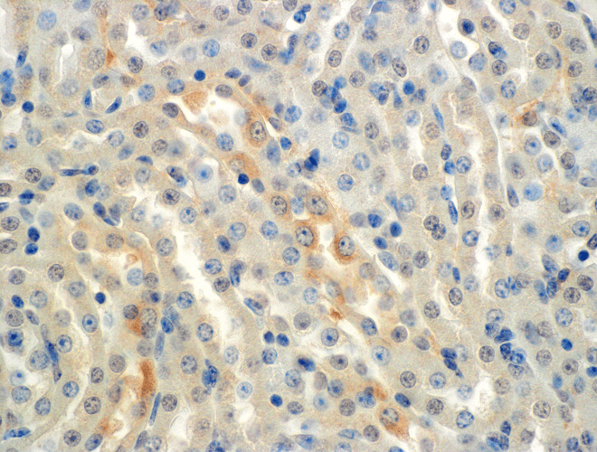 <p>Immunohistochemistry analysis using Mouse Anti-ENaC alpha Monoclonal Antibody, Clone 2G4 (SMC-239). Tissue: Kidney (cortex). Species: Mouse. Primary Antibody: Mouse Anti-ENaC alpha Monoclonal Antibody (SMC-239) at 1:150. Localization: Collecting duct principal cells. Magnification: 60X.</p>