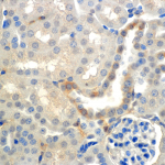 SMC-240-ENaC-beta-Antibody-7B8-IHC-Mouse-Kidney-cortex-60X-1.png