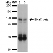 Mouse Anti-ENaC beta Antibody [7B8] used in Western Blot (WB) on Mouse Whole kidney homogenates (SMC-240)