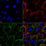 SMC-249-HSP70-Antibody-1H11-ICC-IF-Human-HCT116-cells-1.png