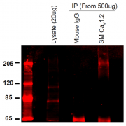 Mouse Anti-CaV1.2 Calcium Channel Antibody [S57-46] used in Immunoprecipitation (IP) on Rat INS-1E cells (SMC-300)