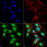 SMC-300_Cav12_Antibody_S57-46_ICC-IF_Human_SK-N-BE-Cells-Human-Neuroblastoma-cells_60X_Composite_1.png