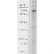 Mouse Anti-HCN1 Antibody [S70-28] used in Western Blot (WB) on Rat brain membrane lysate (SMC-304)