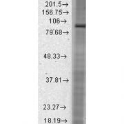 Mouse Anti-HCN2 Antibody [S71-37] used in Western Blot (WB) on Rat brain membrane lysate (SMC-305)