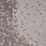 SMC-316_TrpM7_Antibody_S74-25_IHC_Mouse_Brain-Slice_1.png