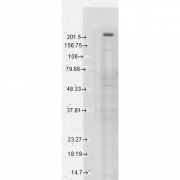 Mouse Anti-TrpM7 Antibody [S74-25] used in Western Blot (WB) on Human Cell lysates (SMC-316)