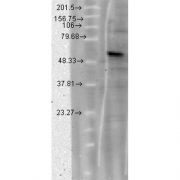 Mouse Anti-CACNB4 Calcium Channel Antibody [S10-7] used in Western Blot (WB) on hamster T-CHO cell lysate (SMC-318)