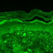 Mouse Anti-Slo3 Potassium Channel Antibody [S2-16] used in Immunohistochemistry (IHC) on Mouse backskin (SMC-326)
