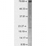 Mouse Anti-Cav Beta2 Calcium Channel Antibody [S8b-1] used in Western Blot (WB) on Human Cell line lysates (SMC-332)