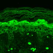 Mouse Anti-GluN2B/NR2B Antibody [S59-36] used in Immunohistochemistry (IHC) on Mouse backskin (SMC-337)