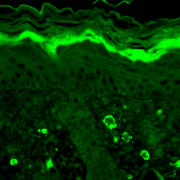 Mouse Anti-GABA A Receptor Antibody [S96-55] used in Immunohistochemistry (IHC) on Mouse backskin (SMC-340)