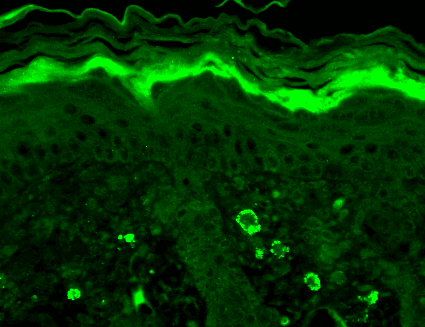 <p>Immunohistochemistry analysis using Mouse Anti-GABA A Receptor Monoclonal Antibody, Clone S96-55 (SMC-340). Tissue: backskin. Species: Mouse. Fixation: Bouin's Fixative and paraffin-embedded. Primary Antibody: Mouse Anti-GABA A Receptor Monoclonal Antibody (SMC-340) at 1:100 for 1 hour at RT. Secondary Antibody: FITC Goat Anti-Mouse (green) at 1:50 for 1 hour at RT. Localization: Dermal staining.</p>