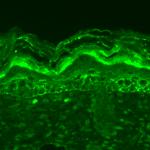 SMC-341_Dnmt3L_Antibody_S117-9_IHC_Mouse_backskin_1.png