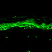 Mouse Anti-Nav1.8 Antibody [S134-12] used in Immunohistochemistry (IHC) on Mouse backskin (SMC-342)