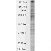 Mouse Anti-Nav1.8 Antibody [S134-12] used in Western Blot (WB) on Monkey COS transient cell lysate (SMC-342)