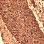 SMC-390_Sodium-Iodide-Symporter_Antibody_14F_IHC_Mouse_Thyroid_1.png