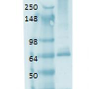 Mouse Anti-Sodium Iodide Symporter Antibody [14F] used in Western Blot (WB) on Human thyroid lysate (SMC-390)