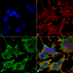 SMC-401-SNAT1-Antibody-S104-32-ICC-IF-Human-Neuroblastoma-cell-line-SK-N-BE-60X-Composite-1.png