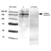 Mouse Anti-Ankyrin B Antibody [S105-17] used in Western Blot (WB) on Rat brain membrane lysate (SMC-414)