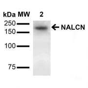 Mouse Anti-NALCN Antibody [S187-7] used in Western Blot (WB) on Rat Brain (SMC-417)
